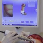 Promo PZ - Noile tehnologii de realizare a coroanelor si a fatetelor dentare - Clinicile Dr. Leahu - Arena Communications